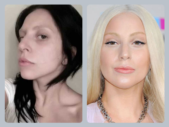 lady gaga nose before after